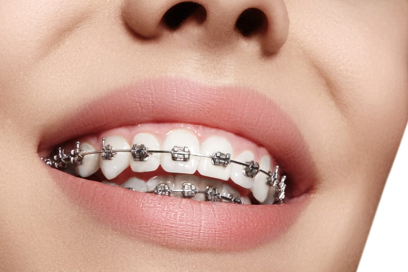 best dental braces